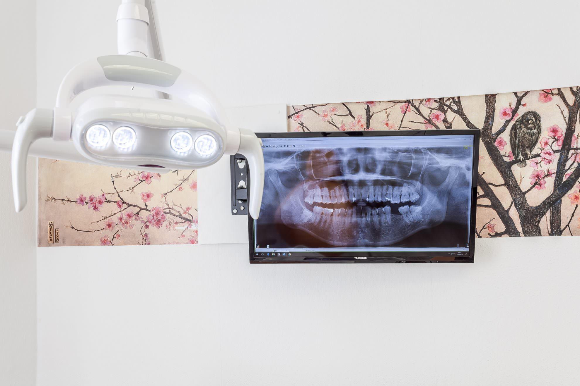 Digital Röntgen